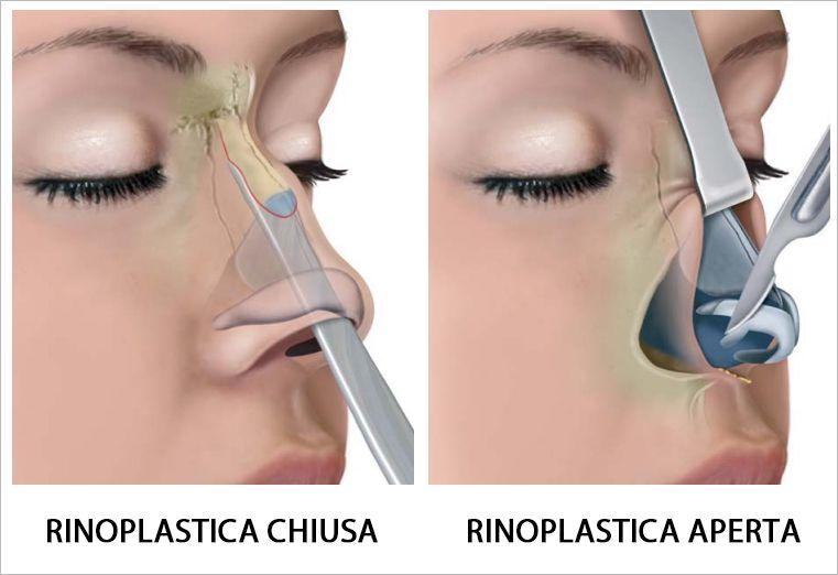 rinoplastica-chiusa-aperta.jpg